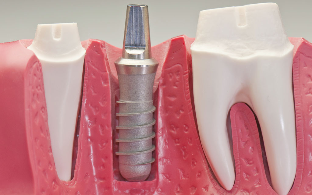 implanturi.jpg